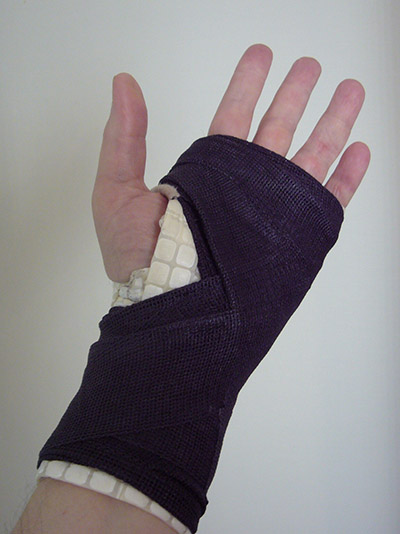 Hand in cast